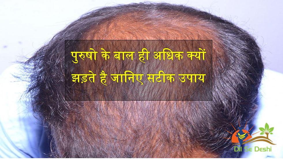 hair-fall-panacea treatment