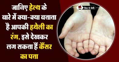 what your palm tells about your health