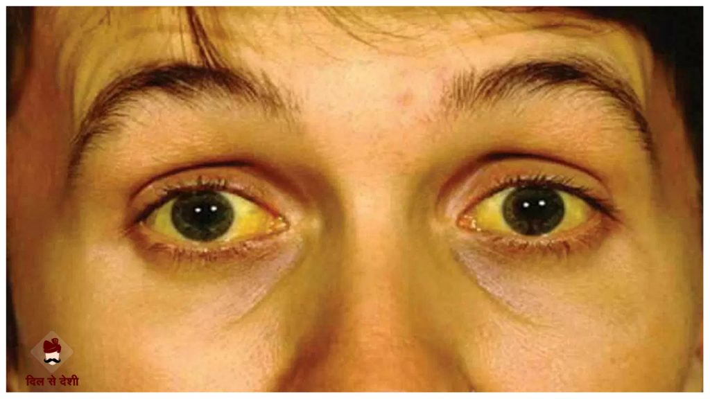 Jaundice Cause and Treatment in Hindi