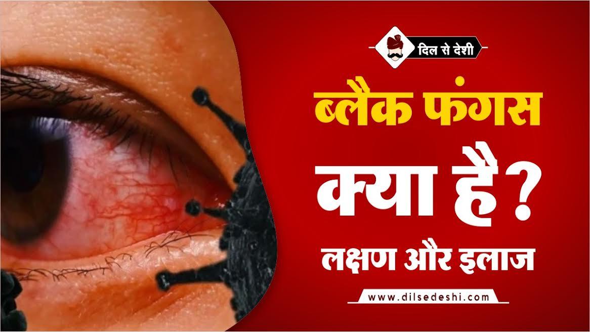 Black Fungus Symptoms, Treatment In Hindi