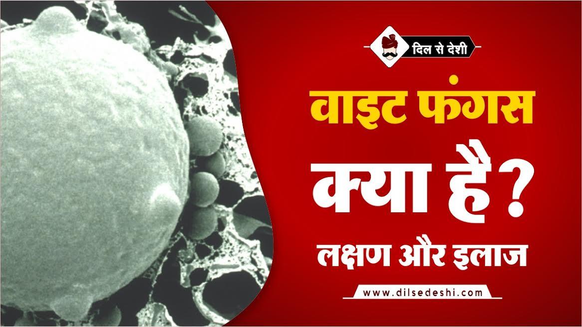 Wight Fungus Symptoms, Treatment In Hindi